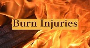 Burn Injuries Attorney